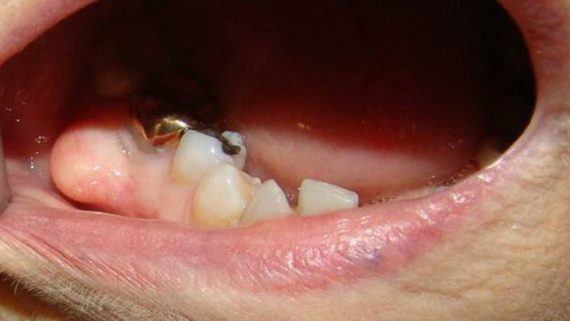 Киста после удаления зуба