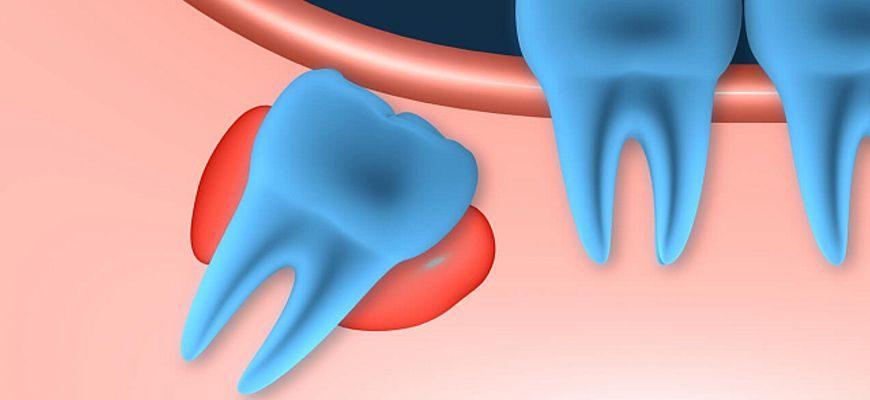 Зуб мудрости в десне удаление кисты