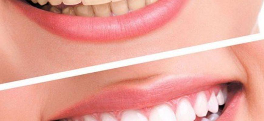 Ламповое отбеливание зубов на аппарате beyond white spa
