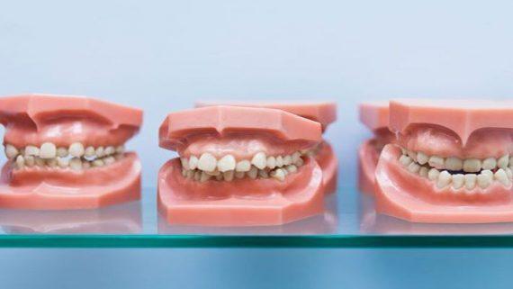 Можно ли изменить прикус зубов у взрослого человека