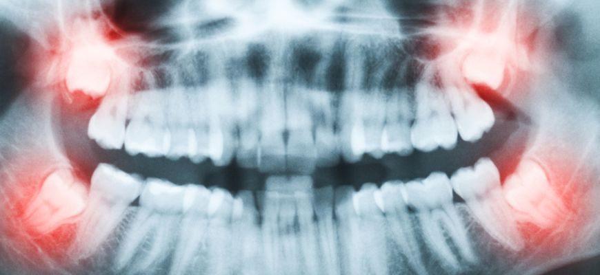 Нужно ли удалять зубы мудрости