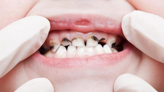 почернел один зуб что делать в домашних условиях