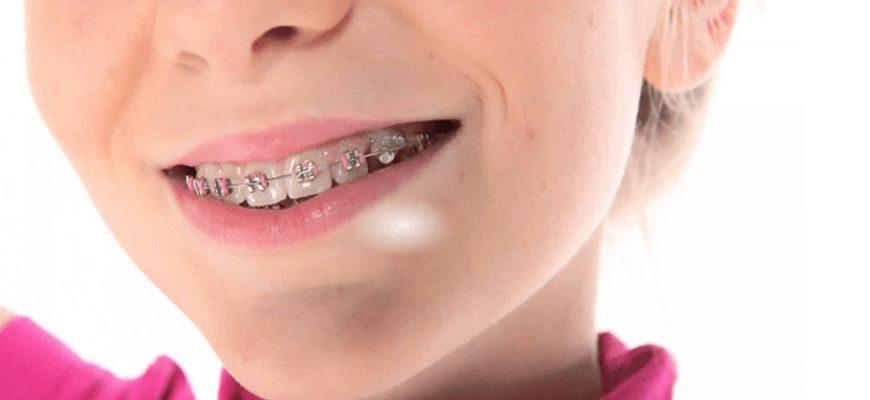 сколько носить скобы на зубах чтобы их выпрямить
