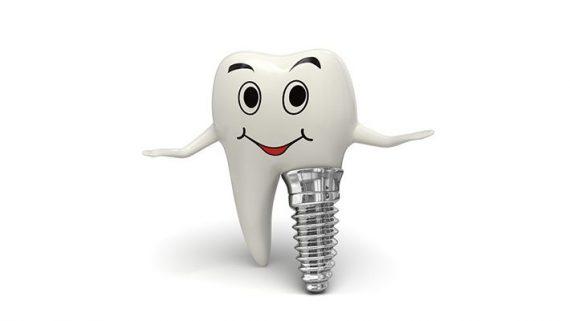 Сколько по времени идет операция по имплантации зубов