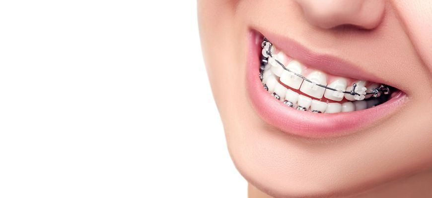 за какое время выравниваются зубы при ношении брекетов