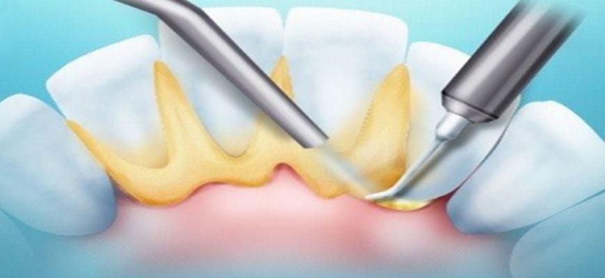 Желтый налет на зубах причины и способы устранения